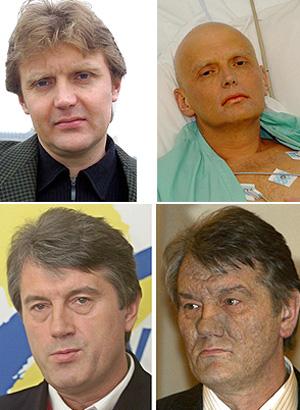 20140418-agente_secreto_alexander_litvinenko_y_candidato_ucraniano_envenenado.jpg