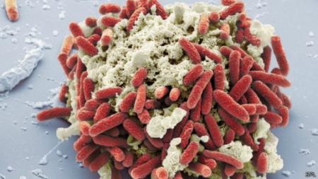 20140430-bacteria_ecoli.jpg