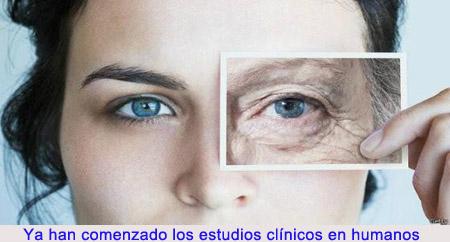 20141108-1_envejecimiento.jpg