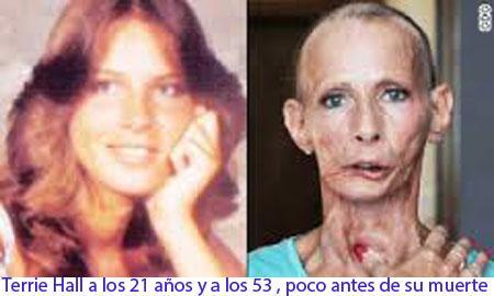 20150212-1_cancer.jpg