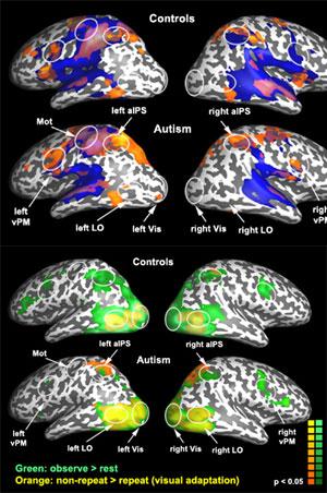 Imágenes del cerebro tomadas durante el experimento.Foto: