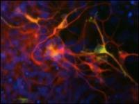 El estudio analizará por qué mueren las neuronas encargadas de producir dopamina.