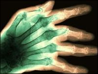 Los pacientes con artritis producen una proteína que parece proteger de Alzheimer.