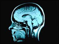 Radiografía del cerebro de una persona con síntomas de Alzheimer.
